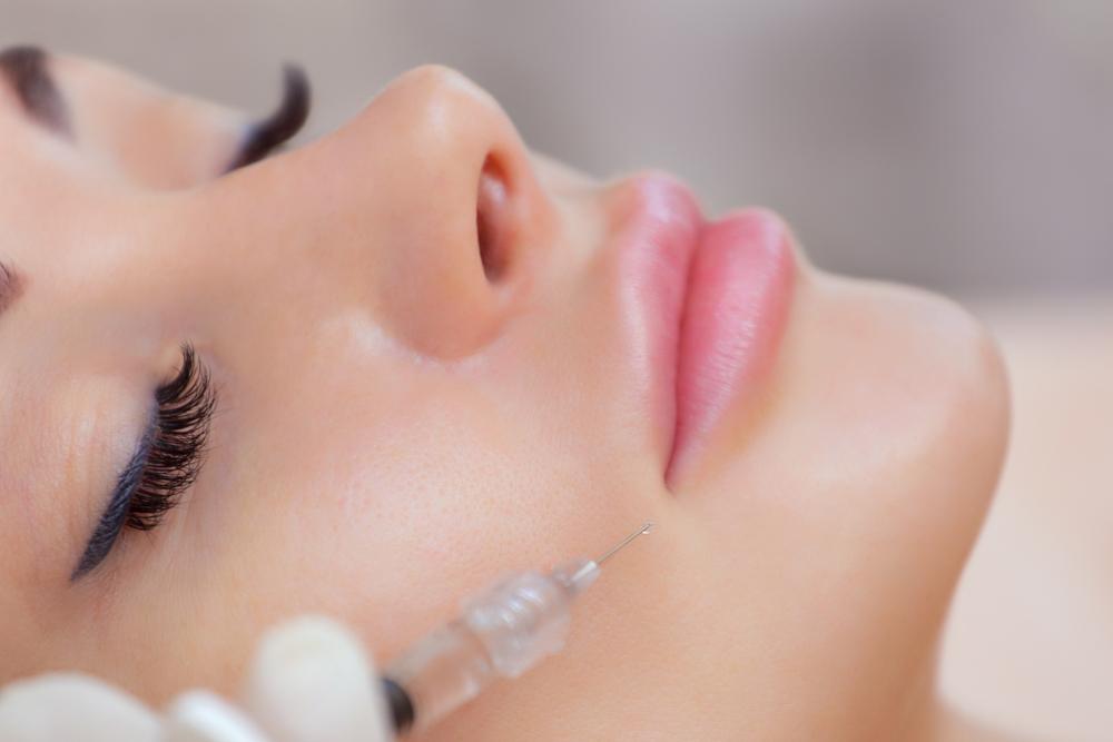 הזרקת מילוי שפתיים