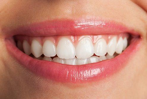 טיפולי שיניים קוסמטיים